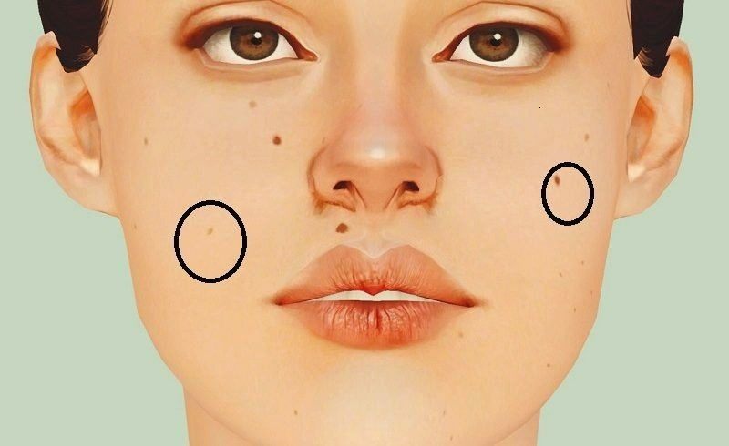 Moles-On-Your-Body